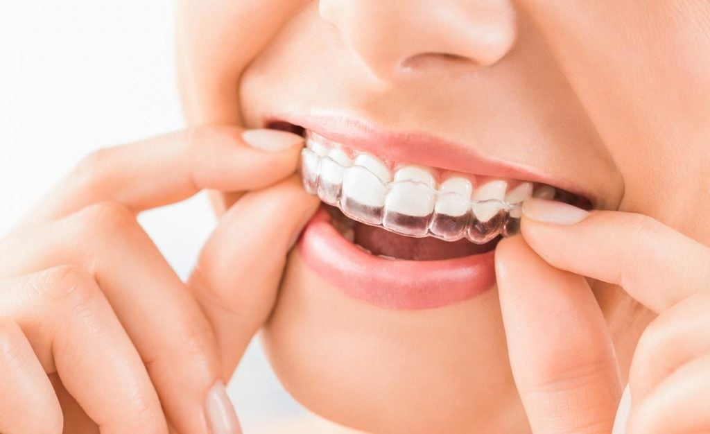 Newer orthodontic options make treatment far easier for our patients while still achieving great results.
